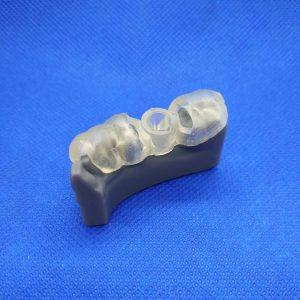 Technologia SLA-Żywica Grey+Żywica Dental SG-Model uzębienia pacjenta z szablonem implantologicznym