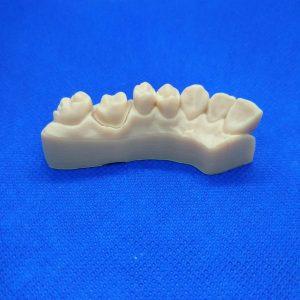 Technologia SLA-Żywica Dental Model-Fragment uzębienia