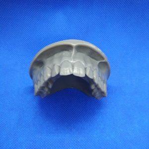 Technologia SLA-Żywica Grey-Model ludzkiego uzębienia
